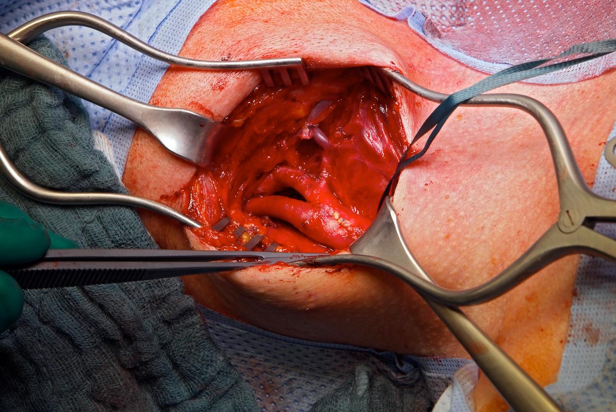 """Bei der """"Carotis""""-Operation wird eine Verstopfung der Halsschlagader herausoperiert."""